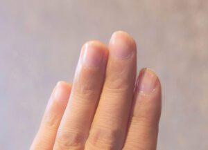 爪が小さい、丸い方へ…キレイな爪に導く3つの方法「その1」